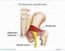 Piriformis-syndrome-web-large800x600